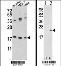 Anti-CFL1 Rabbit Polyclonal Antibody (AP (Alkaline Phosphatase))