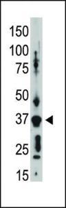 Anti-GJD2 Rabbit Polyclonal Antibody (HRP (Horseradish Peroxidase))