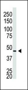 Anti-GJA5 Rabbit Polyclonal Antibody (PE (Phycoerythrin))