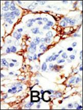 Anti-DOK2 Rabbit Polyclonal Antibody (APC (Allophycocyanin))