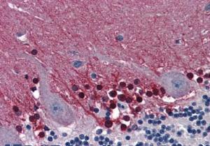 Anti-CBS Mouse Monoclonal Antibody [clone: 30]