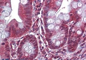 Anti-DBI Mouse monoclonal antibody