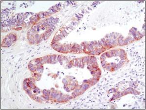 Anti-DDR1 Rabbit monoclonal antibody [clone: 11C1024]