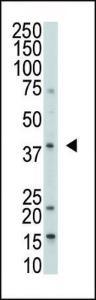 Anti-DUSP1 Rabbit Polyclonal Antibody (AP (Alkaline Phosphatase))