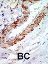 Anti-CROT Rabbit Polyclonal Antibody (APC (Allophycocyanin))