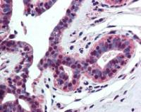 Immunohistochemical staining of paraffin embedded human breast tissue using Histone H4 antibody (primary antibody at 1:200)